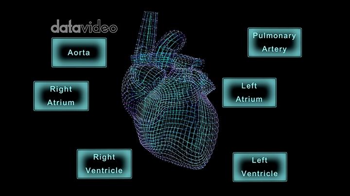 【TVS-3000_AR】心脏-2